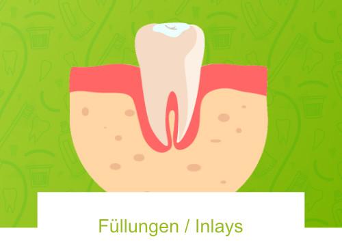 Füllungen / Inlays