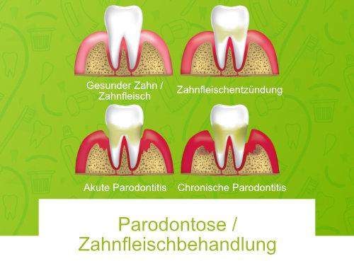 Parodontose Zahnfleischbehandlung