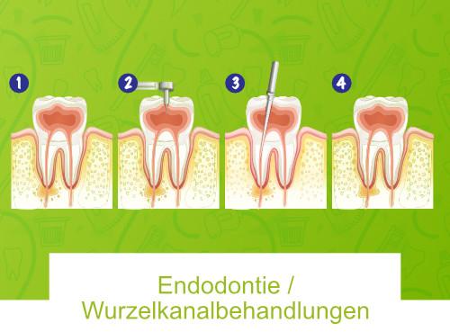 Endodontie / Wurzelkanalbehandlungen