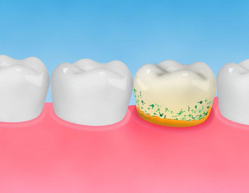 Parodontose - Zahnfleischentzündung - Zahnarztpraxis Eisel in Rodgau