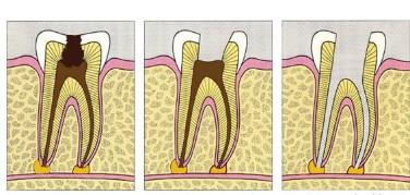 Endodontie - Ihre Zahnarztpraxis Eisel in Rodgau