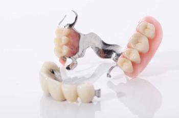 Frontzahnkronen - Zahnarztpraxis Eisel in Rodgau