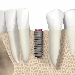 Implantaten als Lückenschluss