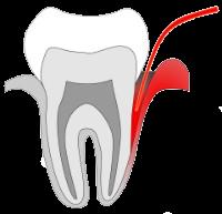 Schonende Laserbehandlung - Zahnfleischentzündung Title - Zahnarztpraxis Eisel in Rodgau