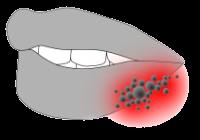 Herpes Bläschen an der Lippe oder im Mund