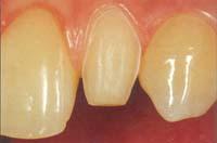 Ästhetik - Präparierter Zahn