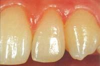 Ästhetik - Der perfekt restaurierte Zahn