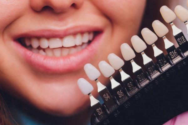 Ästhetische Zahnbehandlungen - Bleaching
